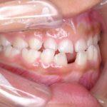 下顎前突施術前2