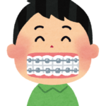 歯科矯正治療 不正咬合