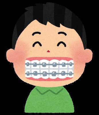 歯の矯正についてのイメージ