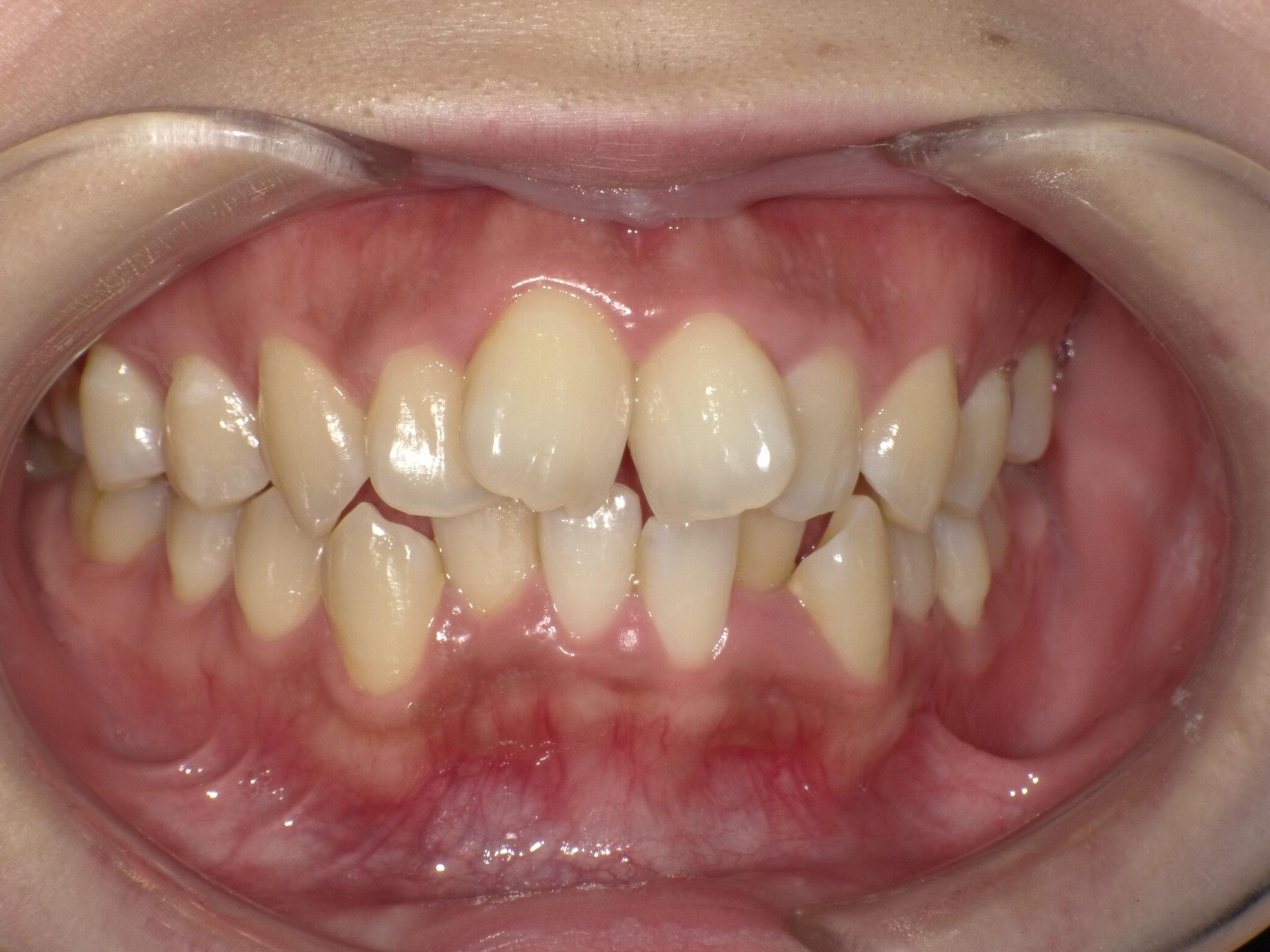 スタッフ歯科矯正~矯正の検査~のイメージ