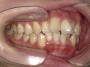 スタッフ歯科矯正③