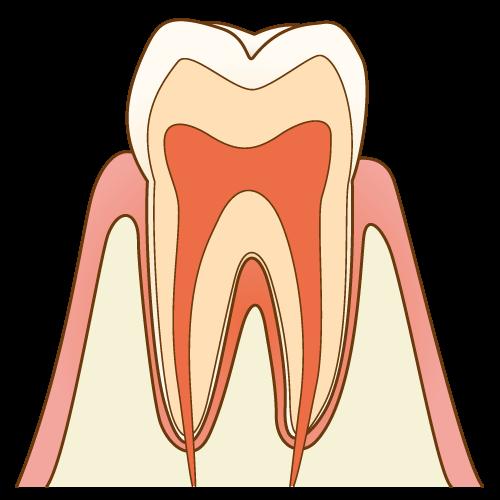 むし歯の進行度のイメージ