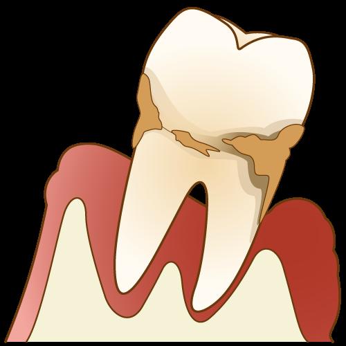 日本における歯周病の現状のイメージ