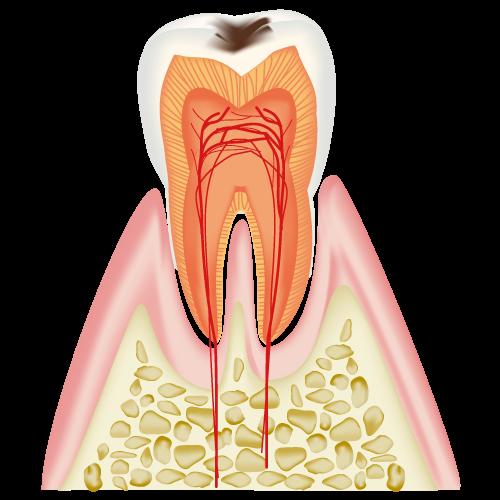 むし歯の進行度COとC1のイメージ
