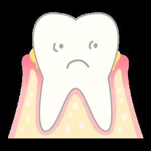 歯周病のメカニズム