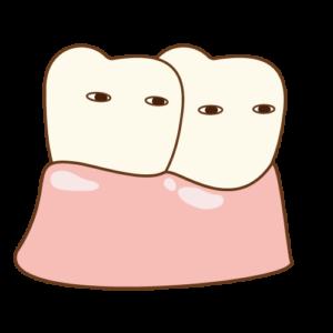 歯 くっつく