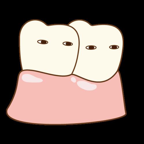 双子みたいな歯のイメージ