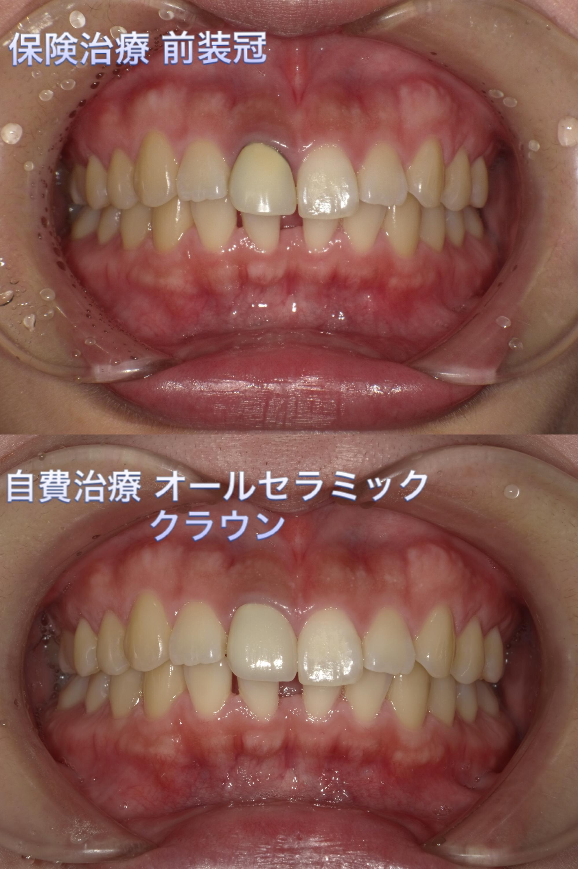 野田さんの前歯☆オールセラミックってこんなもの☆のイメージ