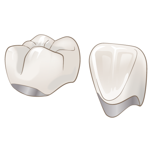 自由診療の白い被せ物~メタルボンドクラウン~のイメージ