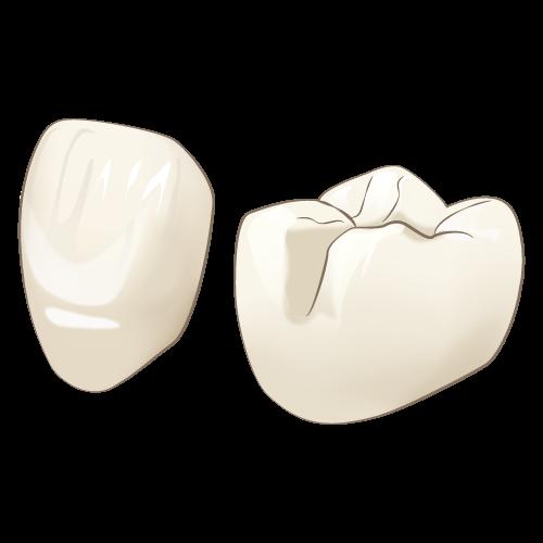 自由診療の白い被せ物~イーマックスクラウン~のイメージ