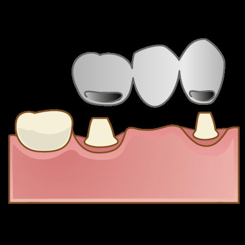 歯を失ってしまったら~ブリッジ~のイメージ