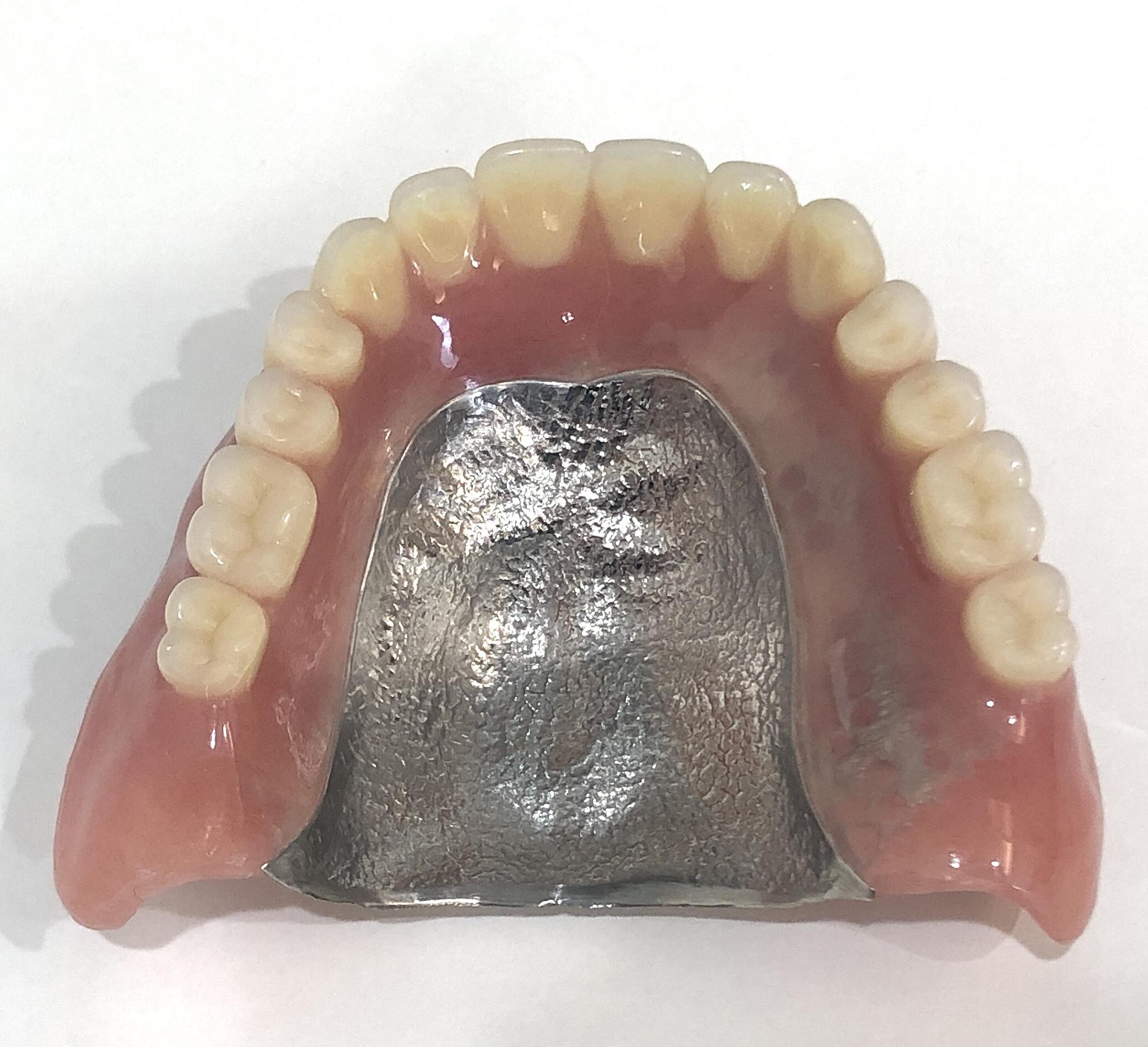 自由診療の入れ歯~金属床義歯~のイメージ