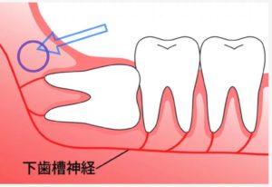 下歯槽神経