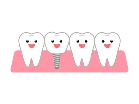 歯を失ってしまったら~インプラントって何?~のイメージ